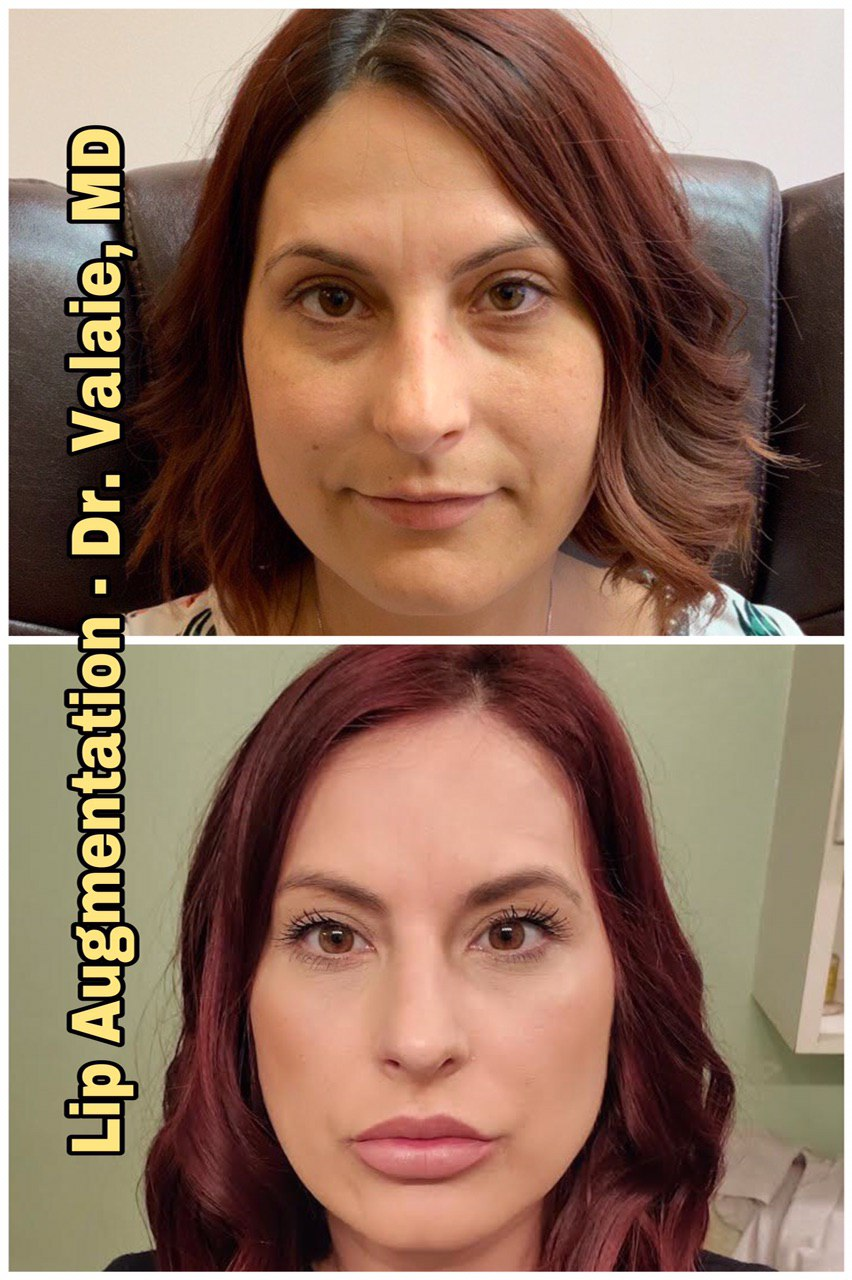 Dermal Fillers by Dr. Valaie, MD, Cosmetic Surgeon at Newport Beach, Orange County, CA